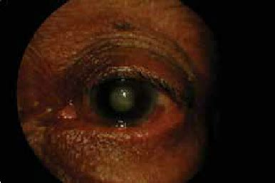 Phacomorphic glaucoma in the left eye at the time of