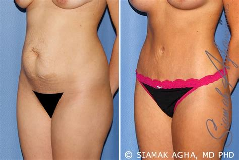 Tummy Tuck Before & After Photos Patient #25 Newport Beach