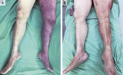 """NEJM on Twitter: """"Images in Clinical Medicine: Phlegmasia"""