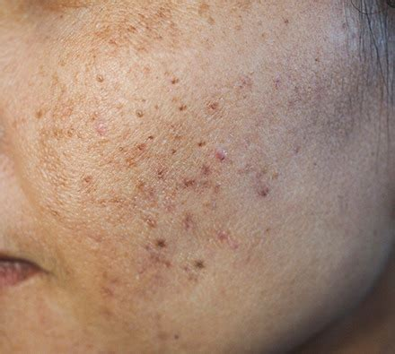 UBER pro Peel with microneedling | Dr Leah Clinics