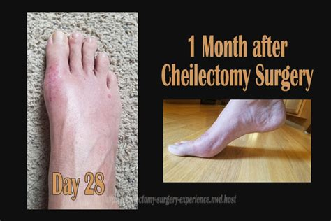 Day 28 One Month After Big Toe Surgery Milestone